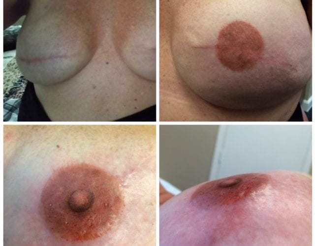 Areola-pigmentation-coral-springs-fl-new-image-beauty-bar