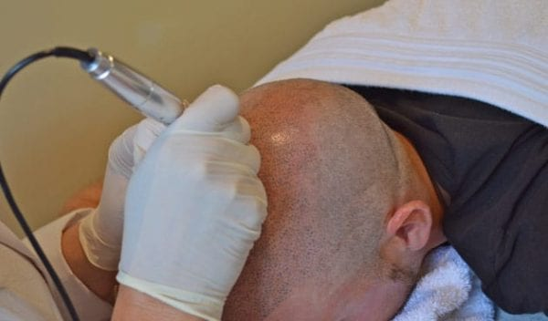 hair-follicle-simulation