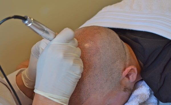 Tattoo Solution for Hair Loss