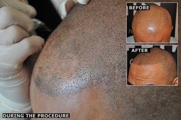 hair-follicle-simulation-for-men-woman