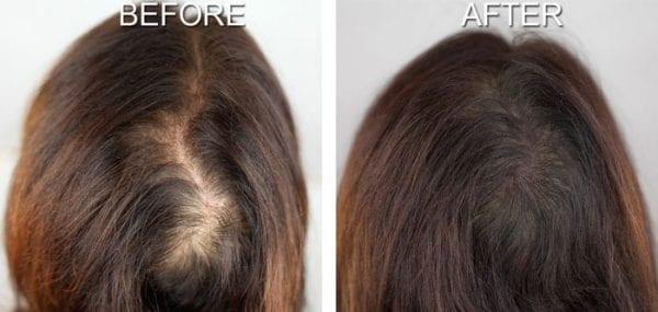 hair-simulation-women hair-simulation-women Coral Springs