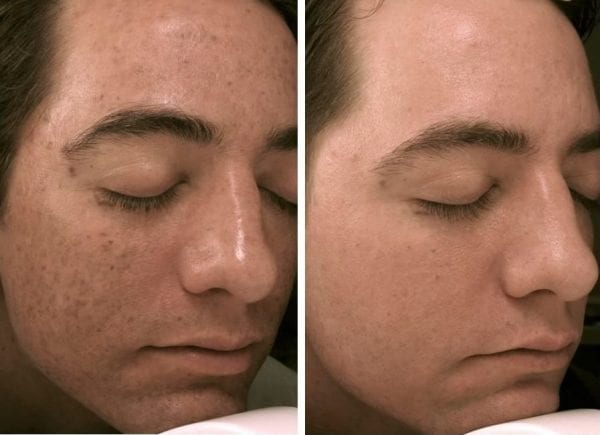 micro-needling-for-men