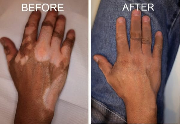 vitiligo treatment Coral Springs