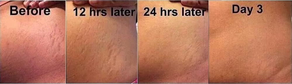 stretch marks removal coral springs fl new image