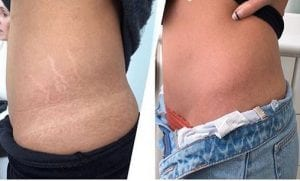 Brazilian Stretch Mark Tattoo: Hide Stretch Marks with Skin-Colored ...