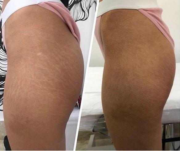 Brazilian Stretch Mark Tattoo: Models Needed