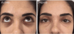 Would you Tattoo your Dark Circles?