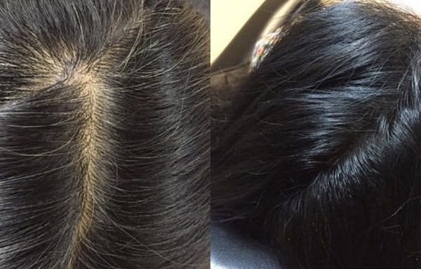 10 Benefits of Scalp Micropigmentation as a Hair Loss Solution