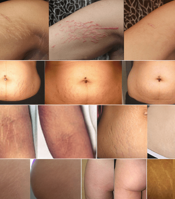 Transformations of Stretch Mark Tattoo Camouflage