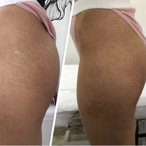 Brazilian Stretch Mark Tattoo Healing Process
