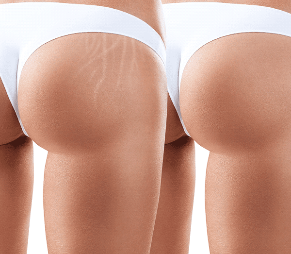 Brazilian Stretch Mark Camouflage Aftercare/Healing