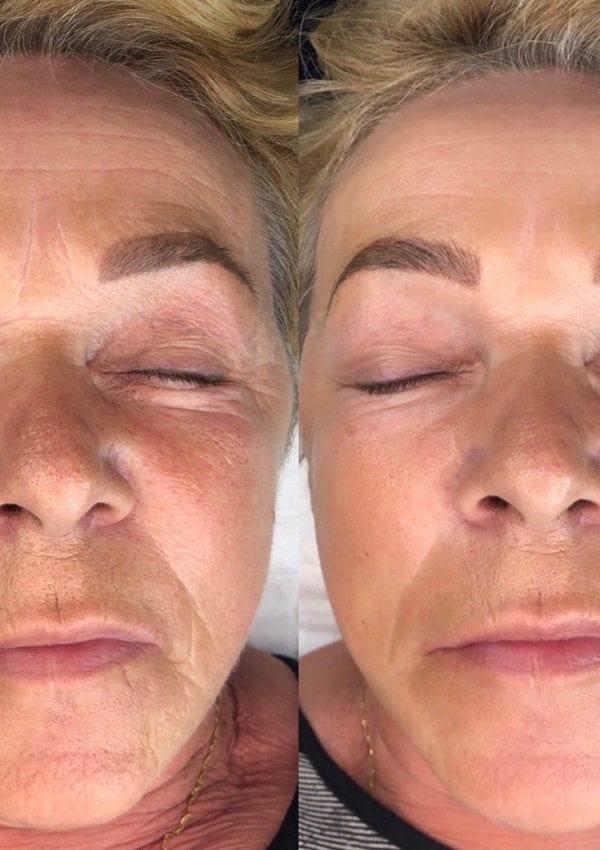 Hydra Nano Derma Stamping *New Procedure*