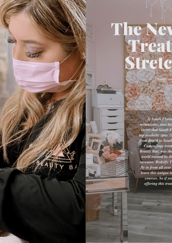 "Miami Vibes Magazine ""The Newest Beauty Treatment For Stretch Marks?"""