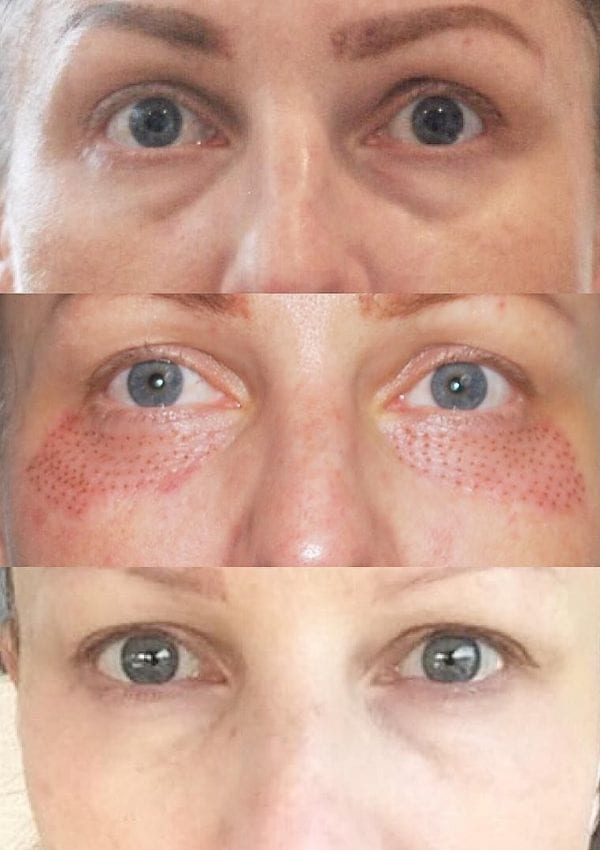 Fibroblast for Tight, Firm, & Beautiful Skin!